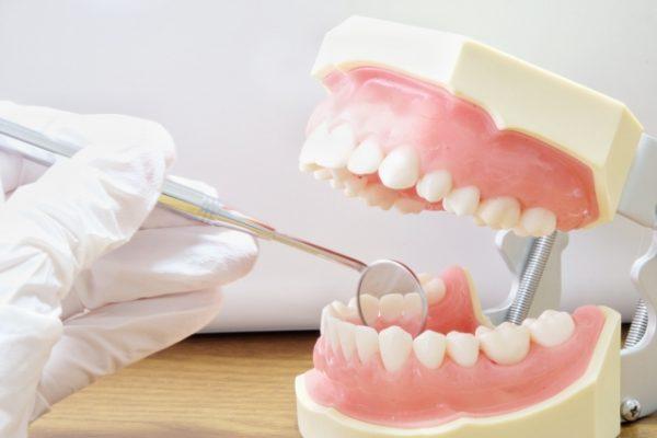 口腔ケアのススメ・・・13 Q:歯茎が黒くなっているところがありますが、治りますか? イメージ