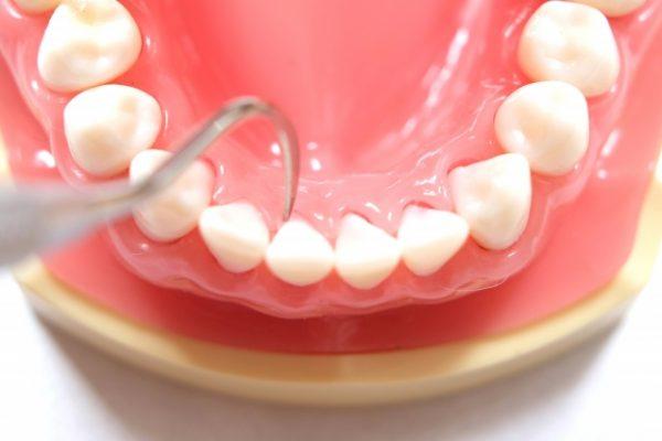 口腔ケアのススメ・・・8 歯石がつかないためには イメージ
